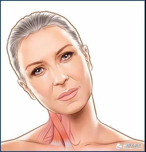 痉挛性斜颈对人体的危害有多大?
